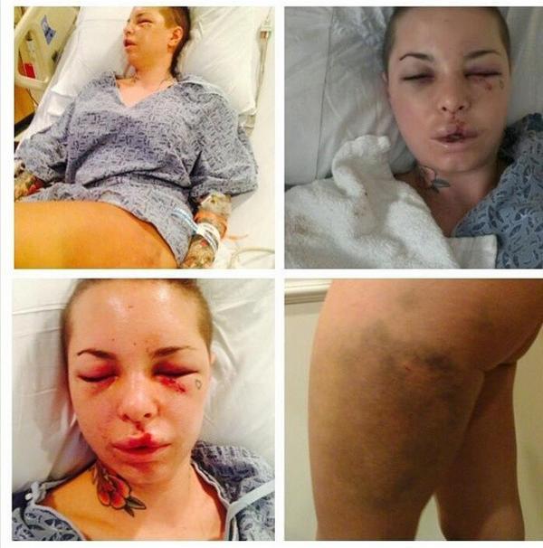 Избитая порнозвезда Кристи Мак
