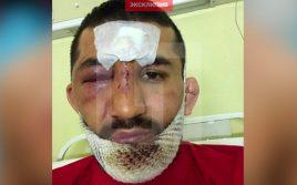 Новые Фото, Видео, Подробности покушения на бойца ММА Расула Мирзаева